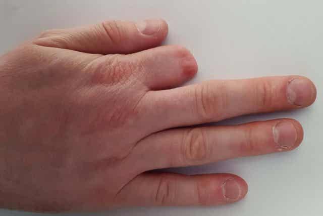 Hand waarvan de wijsvinger geamputeerd is