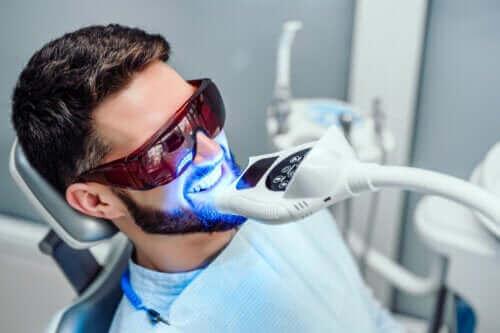 Hoe lang houdt het bleken van tanden aan?