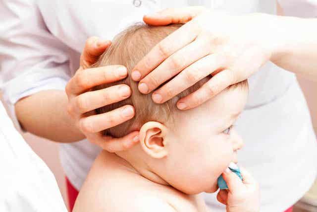 Fontanellen van baby's