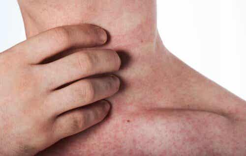 Oorzaken en symptomen van een latexallergie