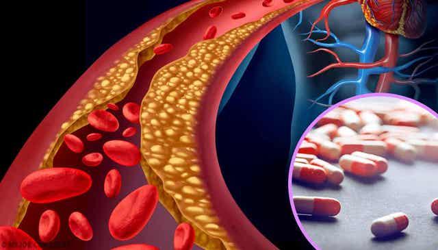 Voedingssupplementen voor hyperlipidemie