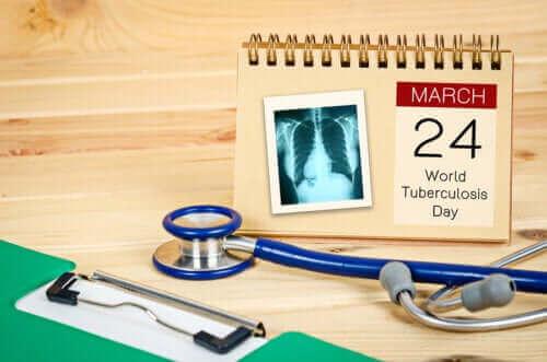 Wereldtuberculosedag: maak een einde aan tuberculose