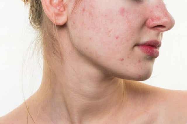 Vrouw met acne
