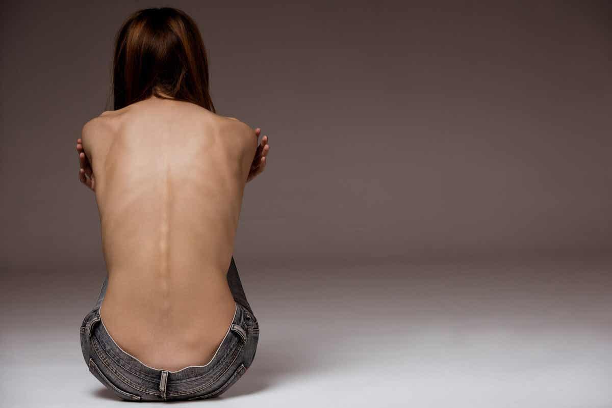 Vrouw met een eetstoornis