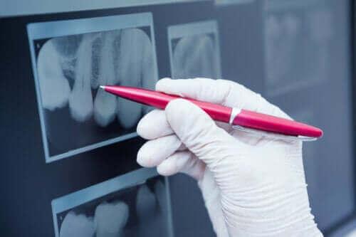 Wat is glazuurhypoplasie en hoe wordt het behandeld?