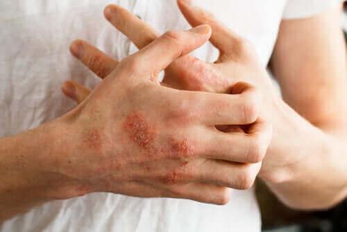 Protopic: een zalf voor atopische dermatitis