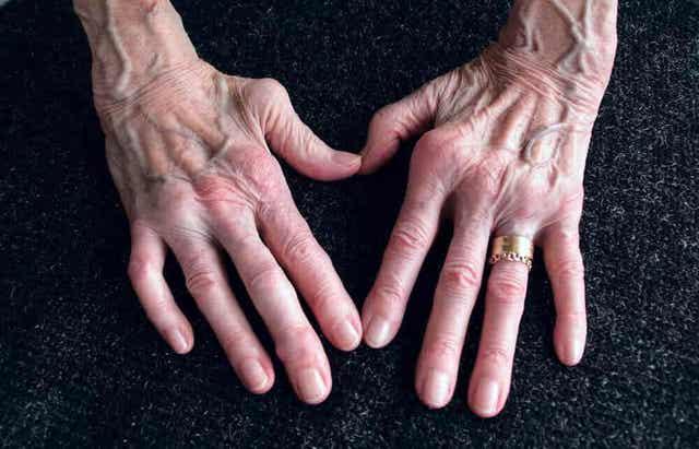 Reumatoïde artritis en wilde yam