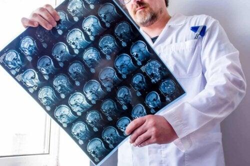 Arts die CT-scan bekijkt