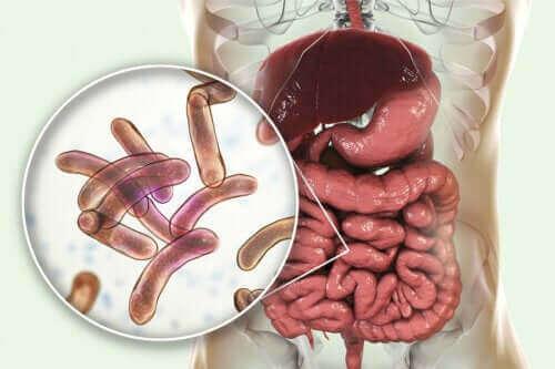 Behandeling voor bacteriële overgroei