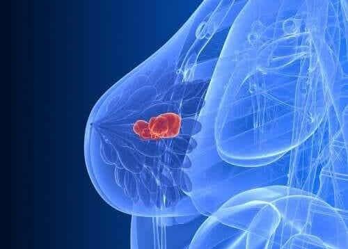 Afbeelding van borstkanker