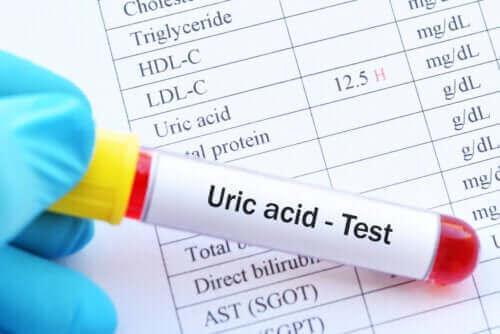 Wat zijn de gevolgen van een hoog urinezuurgehalte?
