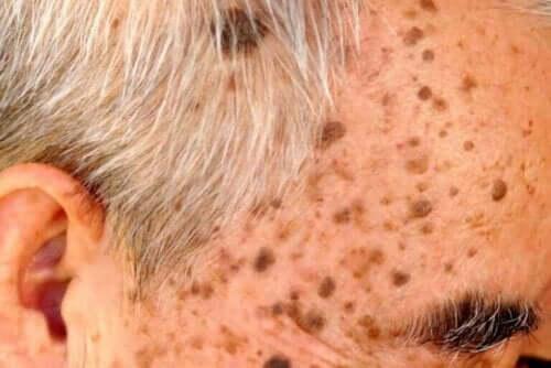 Behandelingen voor seborroïsche keratose