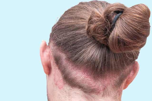Seborroïsch eczeem is een inflammatoire huidaandoening die roos in de wenkbrauwen kan veroorzaken